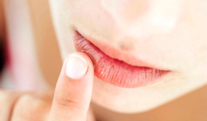 Защищаем губы от обветривания: 5 работающих советов