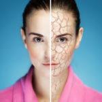 Как избавиться от сухости кожи?